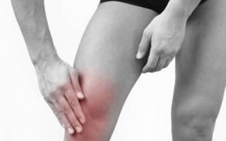 Долго ли длится обострение артроза коленных суставов