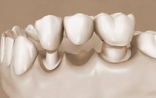 Как получить налоговый вычет на протезирование зубов